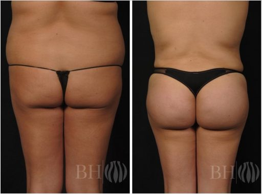 Baltimore Brazilian butt lift before and after photos